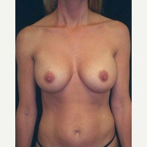 Breast augmentation following pregnancies after 1576870