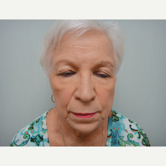 65-74 year old woman treated with Eyelid Surgery before 3823410