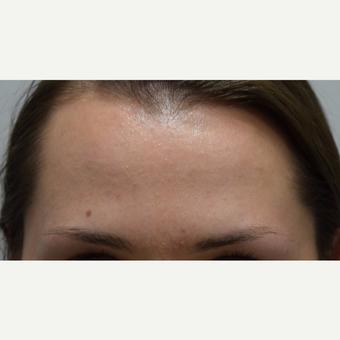 25-34 year old woman treated with Xeomin after 3673315