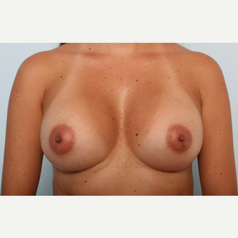 Breast Augmentation after 3425436