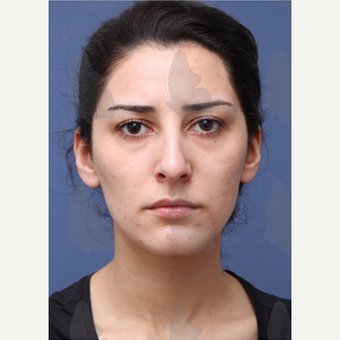 25-34 year old woman treated with non surgical Facelift before 2783140