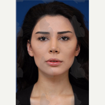 25-34 year old woman treated with non surgical Facelift after 2783140
