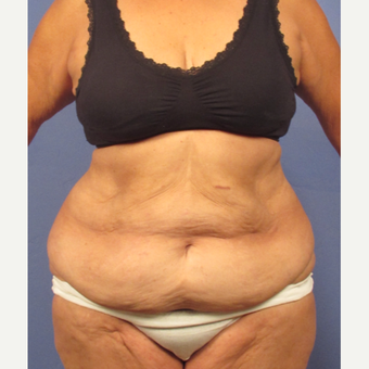 45-54 year old woman treated with Tummy Tuck before 3131884