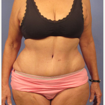 45-54 year old woman treated with Tummy Tuck after 3131884