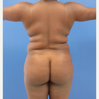 35 y.o. female – Lipo of abdomen, flanks, and back with fat transfer to buttocks – 1300cc per side before 3344826