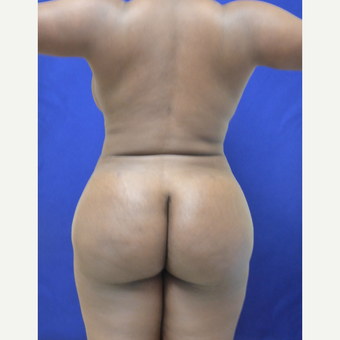 35 y.o. female – Lipo of abdomen, flanks, and back with fat transfer to buttocks – 1300cc per side after 3344826
