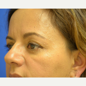 45-54 year old woman treated with Eyelid Surgery before 3391451