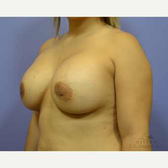 25-34 year old woman treated with Breast Augmentation after 3418998