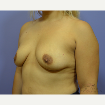 25-34 year old woman treated with Breast Augmentation before 3418998