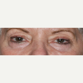 55-64 year old woman treated with Eyelid Surgery before 3848985