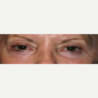 55-64 year old woman treated with Eyelid Surgery after 3848985