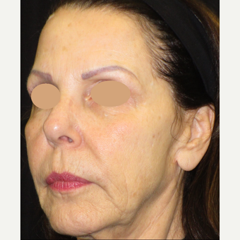 65-74 year old woman treated with Voluma before 3120462
