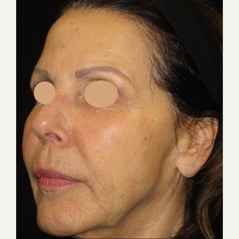 65-74 year old woman treated with Voluma after 3120462