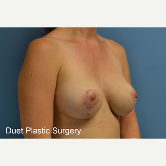35-44 year old woman treated with Breast Lift with Implants after 3368636