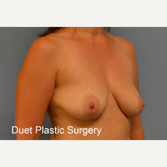 35-44 year old woman treated with Breast Lift with Implants before 3368636