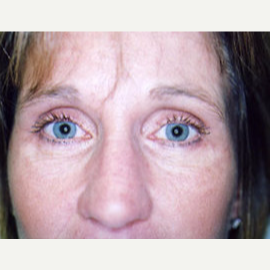 45-54 year old woman treated with Eyelid Surgery after 3748335
