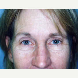 45-54 year old woman treated with Eyelid Surgery before 3748335