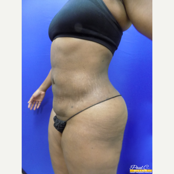 35-44 year old woman treated with Liposuction after 3576764