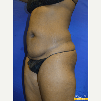 35-44 year old woman treated with Liposuction before 3576764