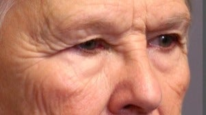 55-64 year old woman treated with Eye Bags Treatment before 3046863