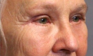 55-64 year old woman treated with Eye Bags Treatment after 3046863