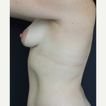 25-34 year old woman treated with Breast Augmentation before 3826470