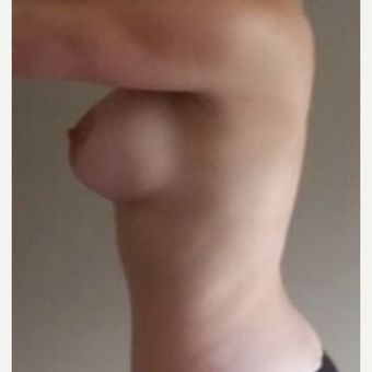 25-34 year old woman treated with Breast Augmentation after 3826470