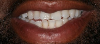 Adult male treated with Invisalign before 2990768