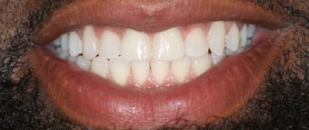 Adult male treated with Invisalign after 2990768