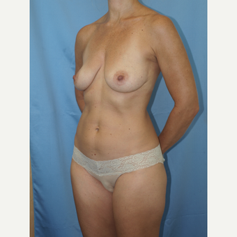 41 year old woman treated with Breast Fat Transfer and Breast Lift before 3585802