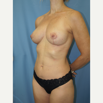 41 year old woman treated with Breast Fat Transfer and Breast Lift after 3585802