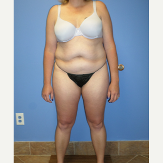 35-44 year old woman treated with Weight Loss before 3370193