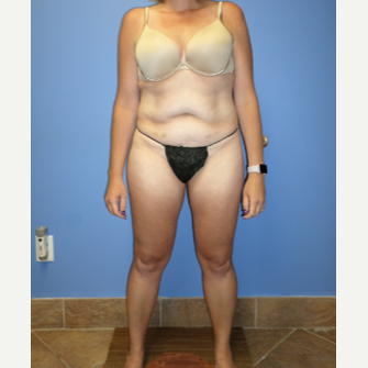 35-44 year old woman treated with Weight Loss after 3370193