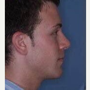 25-34 year old man treated with Rhinoplasty after 3260958