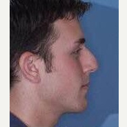 25-34 year old man treated with Rhinoplasty before 3260958