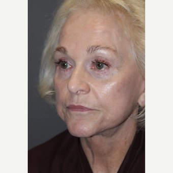 65-74 year old woman treated with Facelift after 3383804