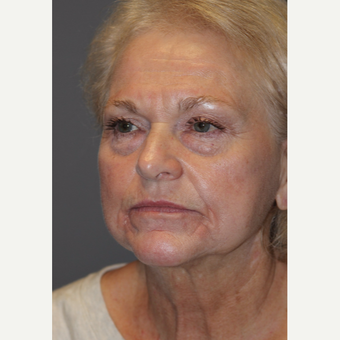 65-74 year old woman treated with Facelift before 3383804