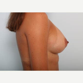 Breast Augmentation after 3425457