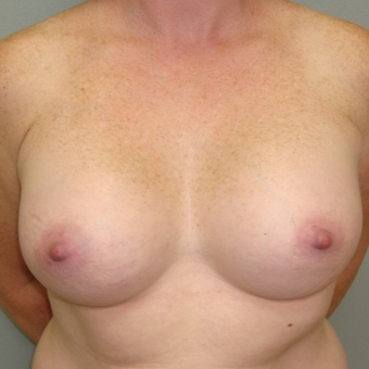 25-34 year old woman treated with Breast Augmentation after 3823077