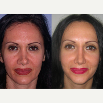 45-54 year old woman treated with Revision Rhinoplasty before 3521503