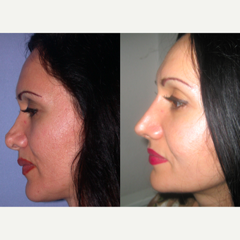 45-54 year old woman treated with Revision Rhinoplasty after 3521503