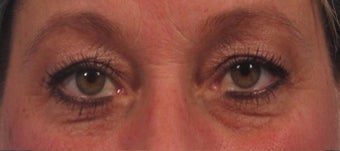 upper blepharoplasty including upper eyelid skin laser resurfacing before 3166870