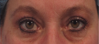 upper blepharoplasty including upper eyelid skin laser resurfacing after 3166870