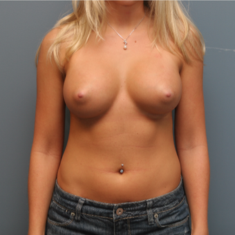 25-34 year old woman treated with Breast Augmentation after 3470327