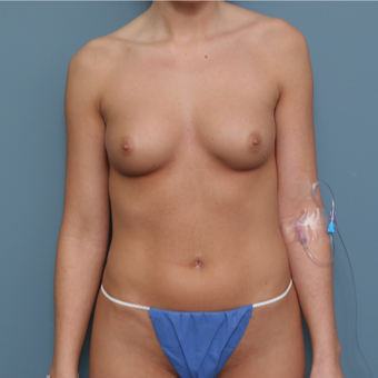 25-34 year old woman treated with Breast Augmentation before 3470327