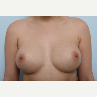 Breast Augmentation after 3340072