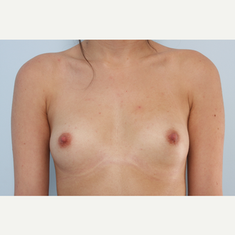 Breast Augmentation before 3340072