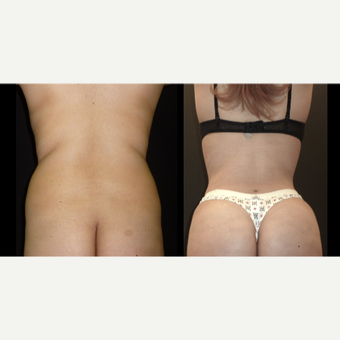 18-24 year old woman treated with Liposuction before 3717680