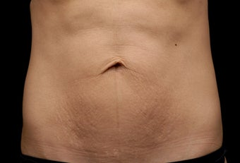 Body contouring after 380982