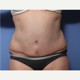 45-54 year old woman treated with Tummy Tuck after 3505974